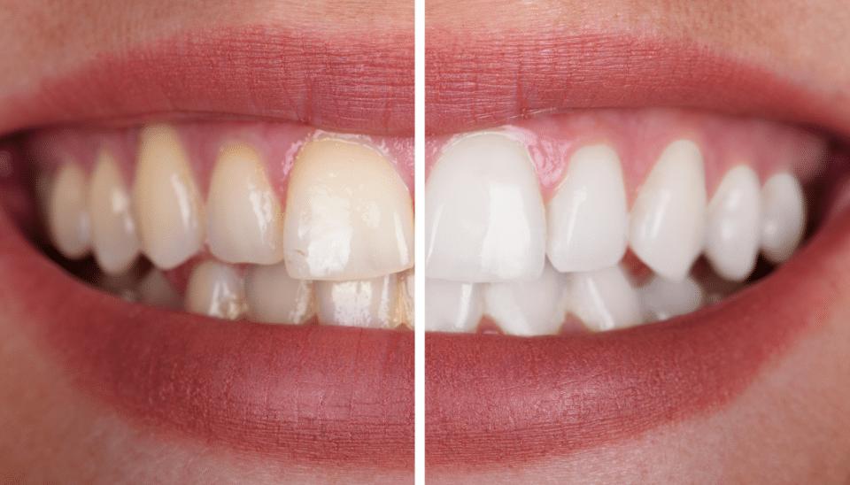 HDC-Tooth Whitening-Blog
